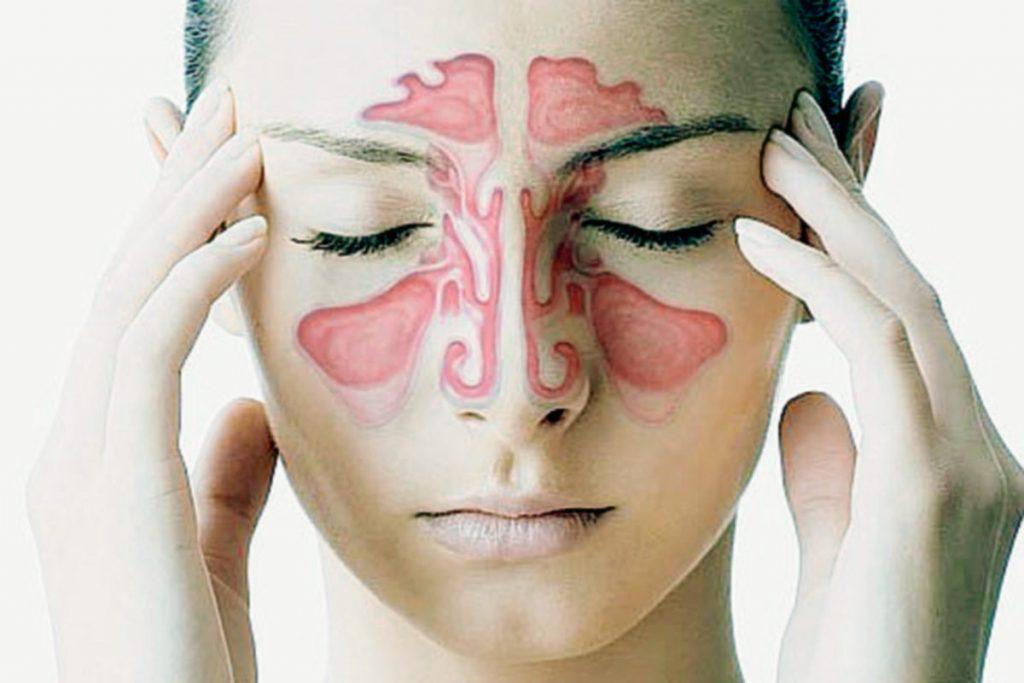 Especialista en sinusitis en Hermosillo